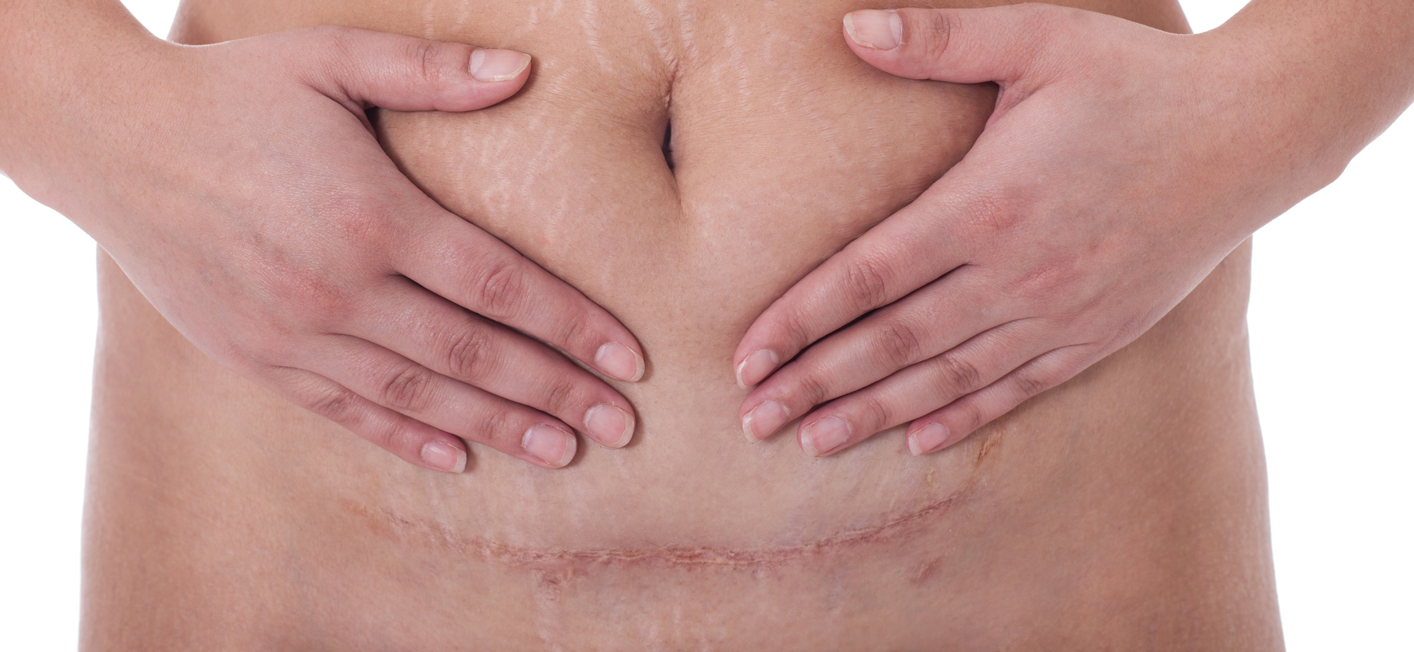Tratamento a laser de cicatrizes ginecológicas