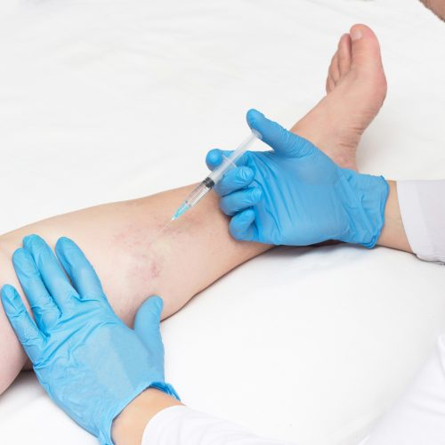 Escleroterapia - BioMulher - centro de tratamento e diagnóstico