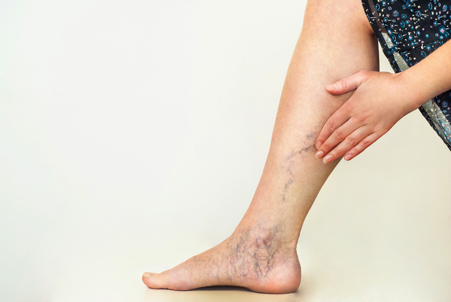 Tratamento de lesões vasculares a laser