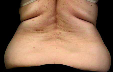 BodyCare - BioMulher - centro de tratamento e diagnóstico