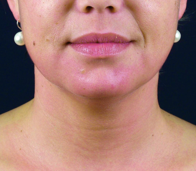 FaceCare - BioMulher - centro de tratamento e diagnóstico
