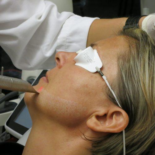 Peelings - BioMulher - centro de tratamento e diagnóstico