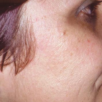 Remoção de Lesões Benignas e Hiperpigmentações - BioMulher - centro de tratamento e diagnóstico