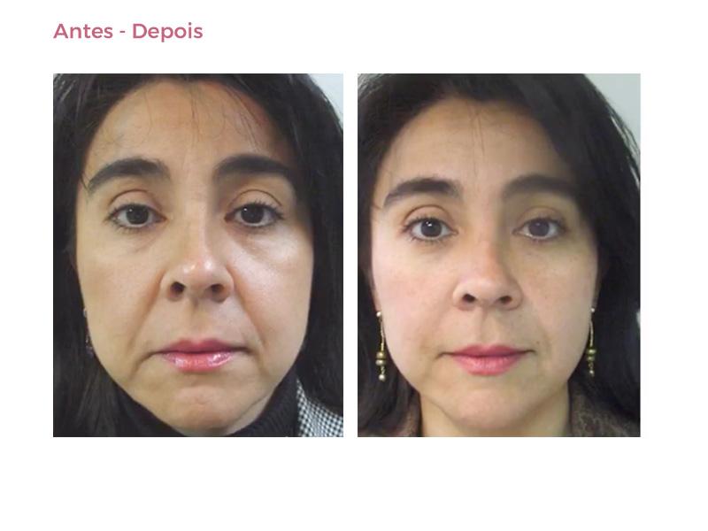 Rosto - Antes e depois - BioMulher - centro de tratamento e diagnóstico
