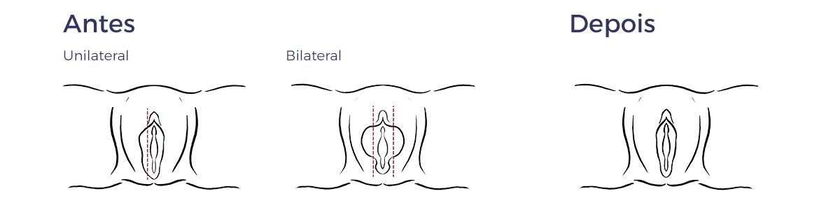 Labiaplastia a Laser
